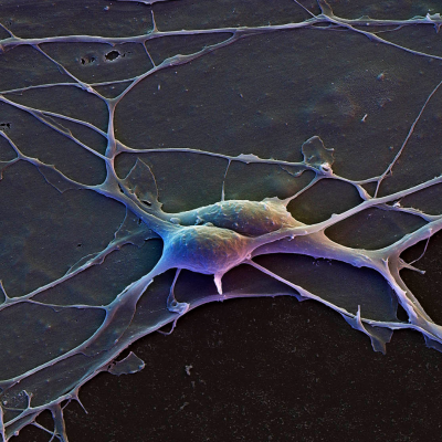Brain Cells (cortical neurons)